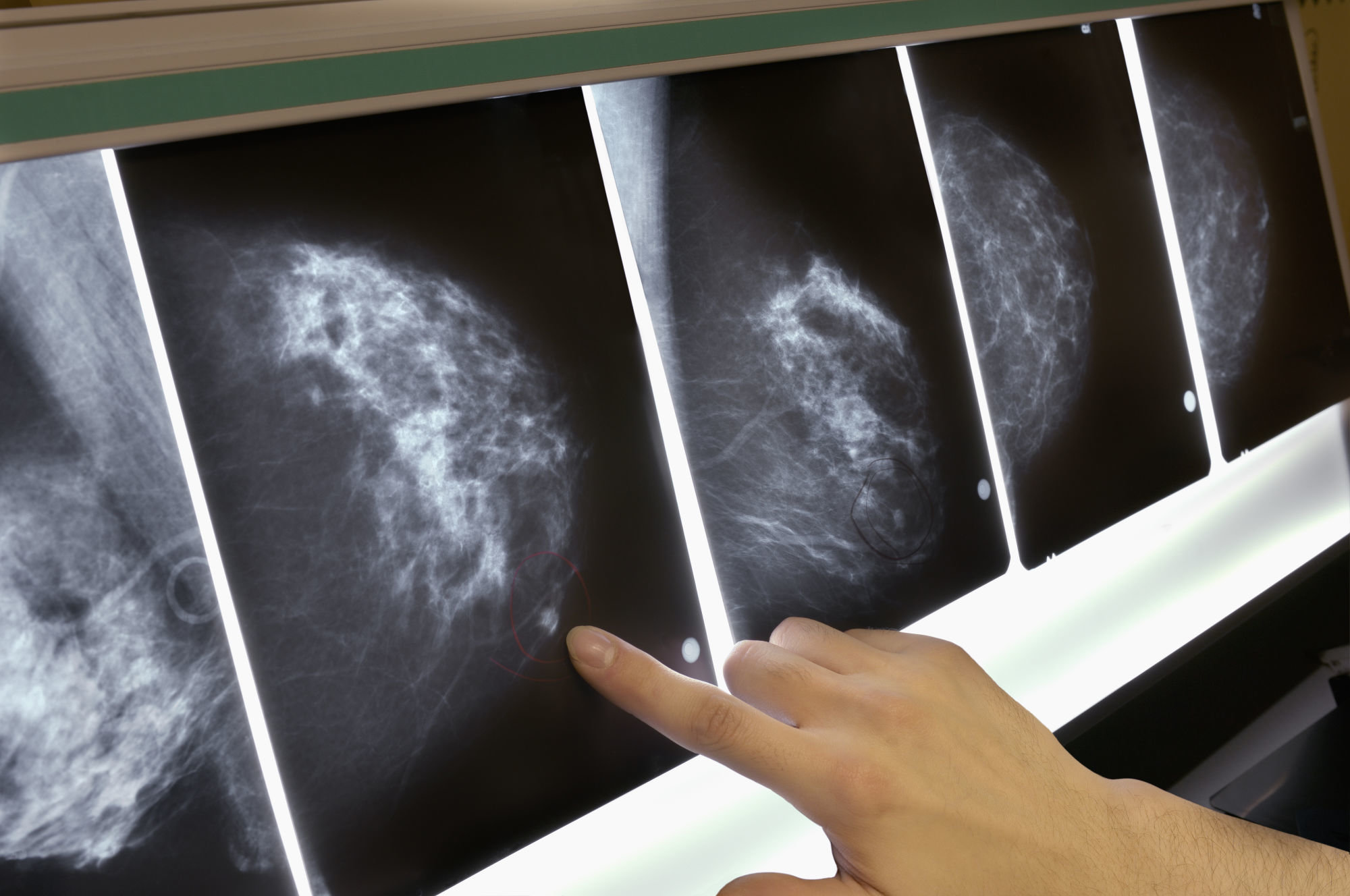 breast cancer MIT tool