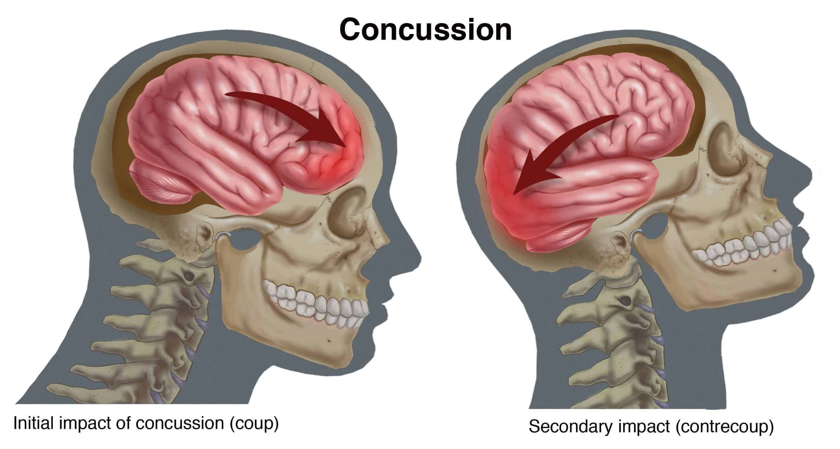Women Are More Prone To Severe Concussions